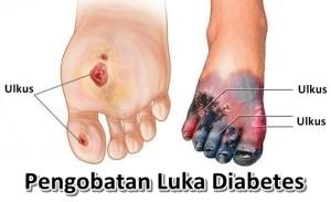 Pengobatan-Luka-Borok-Diabetes-Tanpa-Amputasi